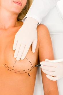 What are the facts about breast implants?